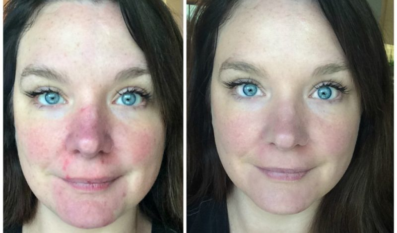 Skin Care in my 30's – what works for me!